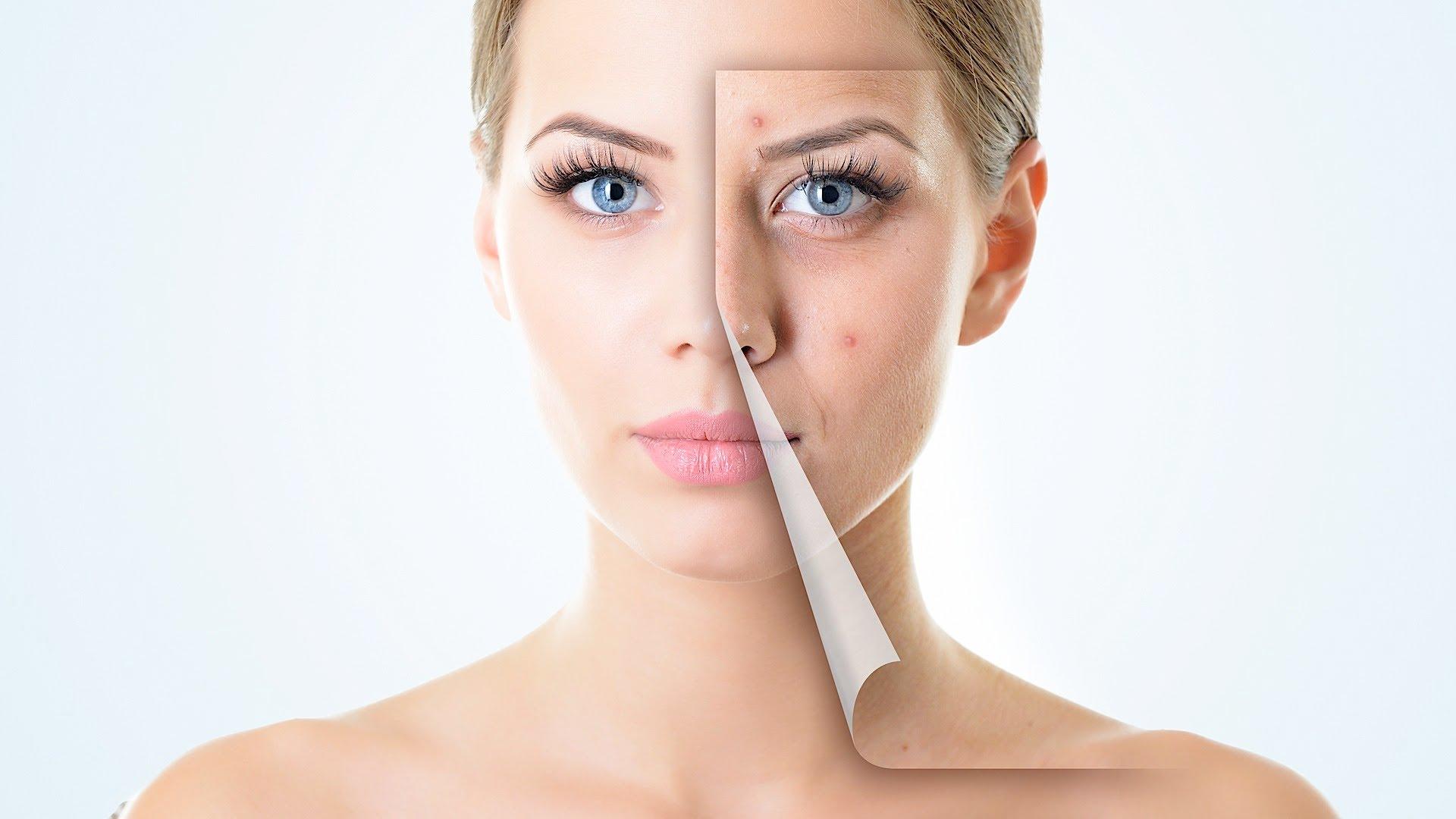 Tratamiento para Piel Grasa - Controla la grasa y evita el acné