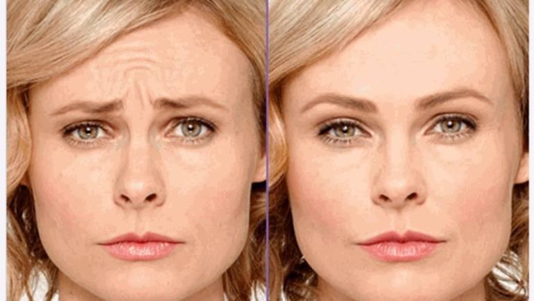 Aplicación Botox